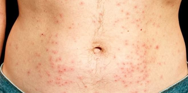 Stuttering Home Remedies: Home Remedies For Chlorine Rash