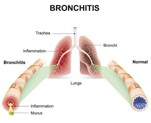 Bronchitis can lead to brown mucus in throat and chest