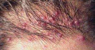 Folliculitis may also cause ingrown hair on your scalp