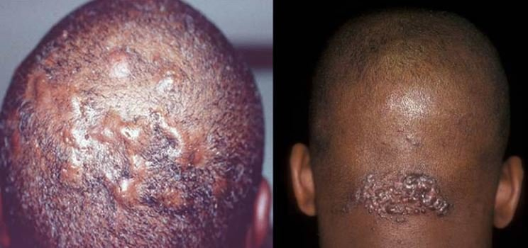Severe ingrown hairs on the head can cause such bumps and scars